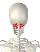 頸椎ヘルニアの原因