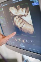 3D Ultraschallgerät, Geburtshilfe-Sonografie, 4D Ultraschall