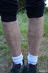 Neuseeland - Motorrad - Reise - Westküste - Sandfliegen fressen uns bei lebendigem Leib