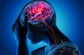 Akupunktur Migräne