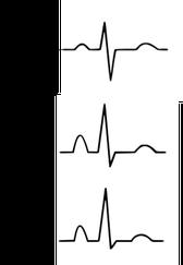 EKG COPD Rechtsatriale Abnormität