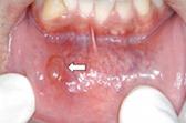 下唇の粘液のう胞