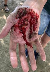 Erste Hilfe leisten bei einer Verletzten Hand