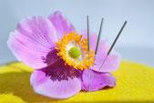 Akupunktur Kurse für Hebammen Köln