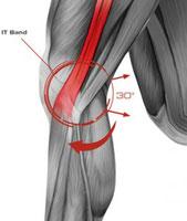 TFL, syndrome de la bandelette ilio-tibiale, syndrome de maissiat, podologue du sport paris