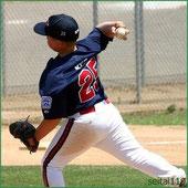 野球による肩の痛み