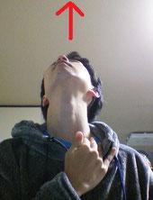 肩こりと腕の痺れに悩む奈良県葛城市の男性