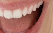 Full mouth desinfektion reduziert die Bakterienzahl im Mund ( © proDente e.V )