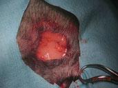 *腫瘍を取り除いた部分です。