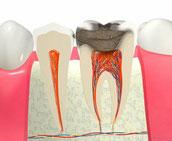 八戸市 歯医者 くぼた歯科 神経 虫歯 おすすめ