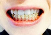 歯列矯正とあごのゆがみ