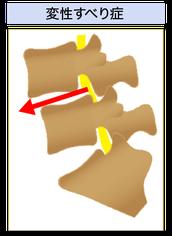 腰椎変性すべり症絵図
