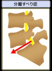 腰椎分離すべり症絵図