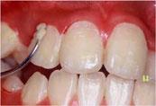 八戸 歯医者 くぼた歯科 初期虫歯 予防 フッ素 ホワイトニング