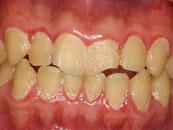 八戸市 くぼた歯科 虫歯 口臭 歯周病