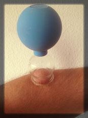 schröpftherapie darmstadt akupunktur naturheilkundepraxis darmstadt