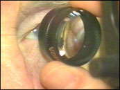 Volk 78D ophthalmoscopy lens
