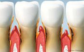 Parodontose: Was kann man gegen Zahnfleischentzündung und Zahnlockerungen tun?