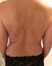 Kryolipolyse Bauch, Shape System Aarau