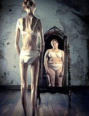 Anoressia nervosa: cause, sintomi e cura