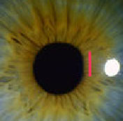 aplatissement pupillaire