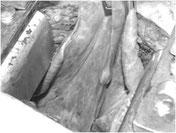 肺転移巣(赤い矢印の部分)