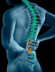 mal-de-dos-colonne-vertebrale