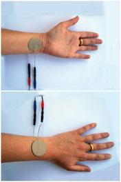 Elektrodenanlage Zusanli Akupunkturpunkt Übelkeit Erbrechen Elektroakupunktur