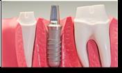 Zahnimplantate mit Prothese | SOS Zahnärzte