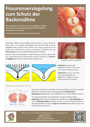 Fissurenversiegelung: Merkblatt für Eltern