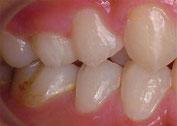 八戸 歯医者 ホワイトニング 小児 初期虫歯