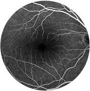 Fluoreszenzangiographie gesundes Auge