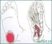 足の裏の痛み足底筋膜炎