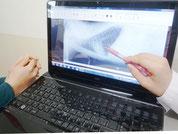 X線検査の説明