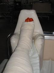 Montag 23.05.2005 nach der OP im Krankenhaus