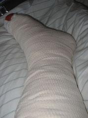 Mittwoch 25.05.2005 Gipstag im Krankenhaus