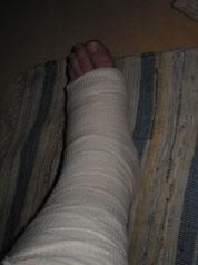 Montag 23.05.2005 zuhause vor der OP