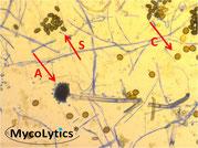 Sporenträger eines Penicillium sp.