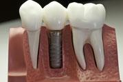 Implantatversorgung/Linksklick zum Vergrössern