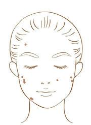 炎症後色素沈着の模式図
