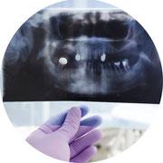 Operative Maßnahmen zur Verbreiterung und Erhöhung des Kieferknochens