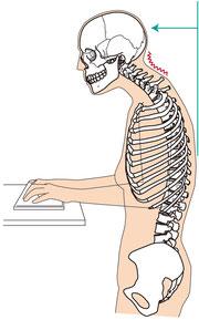 頭部や肩の位置、姿勢を改善してコリの改善に導きます