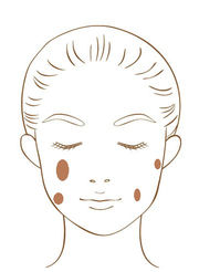 老人性色素斑の模式図