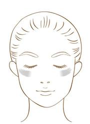 肝斑の模式図
