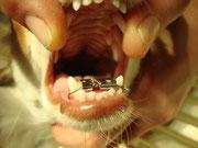 Caninus Engstand Kieferorthopädie