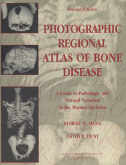 『Photographic Regional Atlas of Bone Disease』