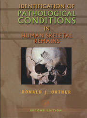 『Identification of Pathological Conditions in Human Skeletal Remains』