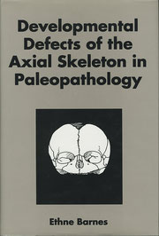 『Developmental Defects of the Axial Skeleton in Paleopathology』