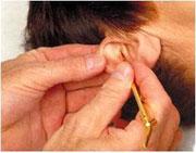 Ohrtastbefund mit dem Metallstäbchen