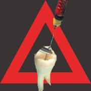 Wenn Sie die Implantat oder Wurzelseite weiterlesen möchten, klicken Sie bitte auf das Bild